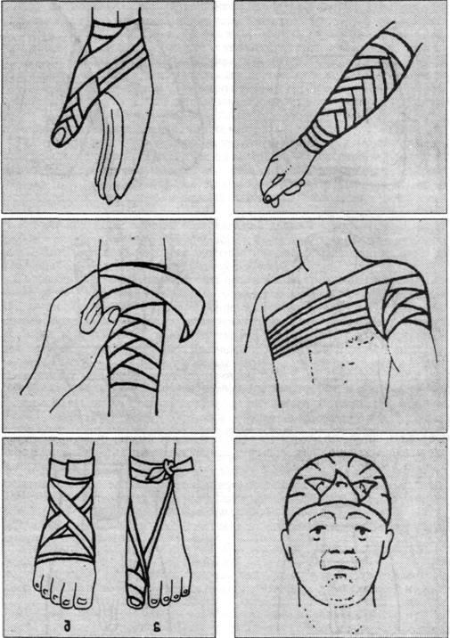 руку марлевой повязкой?