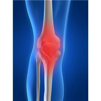 Полиартрит (ревматоидный артрит) симптомы Фото 1