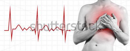 Инфаркт симптомы Фото 1