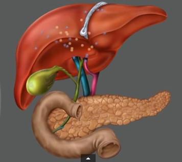 Лечение воспаления желчного пузыря народными средствами и методами Фото 1