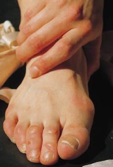 Уринотерапия при подагре отзывы: диета, рекомендации, симптомы и лечение, у взрослых