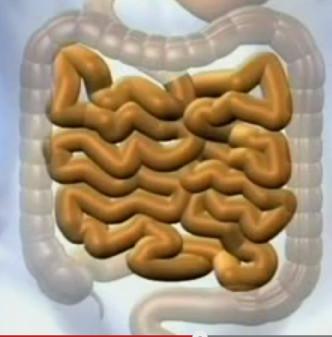 Дисбактериоз кишечника, обусловленный преобладанием стафилококка, является следствием неблагоприятных воздействий лекарственных препаратов. Он развивается на фоне изменения реакций организма  Фото 1