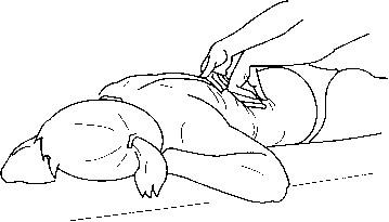 Массаж при сколиотической деформации позвоночника