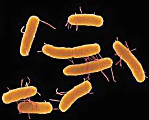 Брюшной тиф - это инфекционная болезнь человека бактериальной природы, которая затрагивает кишечник и лимфатическую систему, характеризующееся длительной лихорадкой, Фото 1