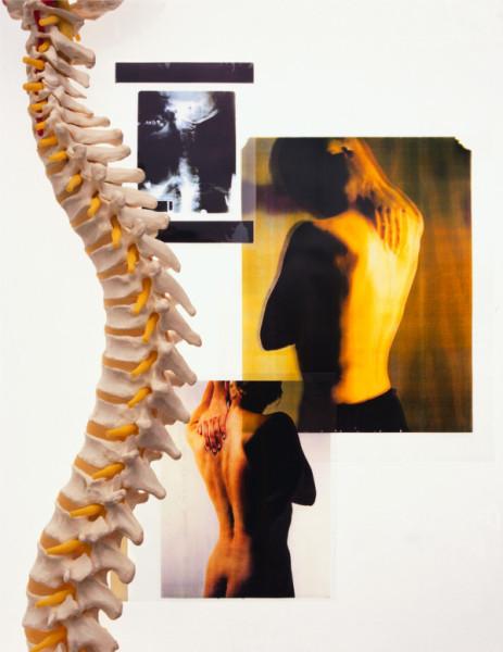 Лечение остеохондроза народными средствами Фото 1