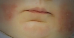 Что значит «аллергия»Слово «аллергия» происходит от двух греческих слов: alios ( иной, другой ) и ergon ( действие )  Фото 1