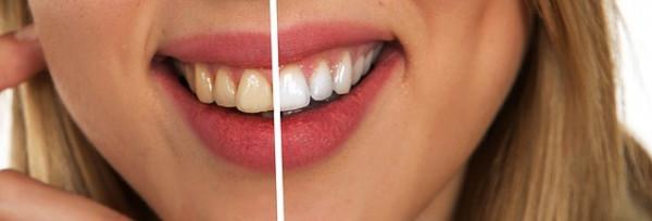 Эндоотбеливание ( внутриканальное отбеливание зубов ) Красивая улыбка – это важно для всех людей. Но бывают случаи, когда зуб  Фото 1