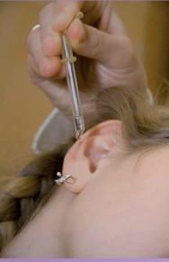 Разновидности и применение капель для ушей при различных отитах Фото 1