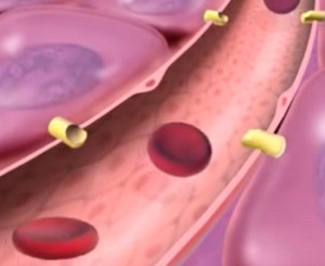 Сепсис — тяжелое заболевание, развивается при заражении крови гноеродными микробами или их токсинами, когда происходит срыв иммунных механизмов.  Фото 1