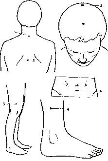 Точечный массаж при аллергии