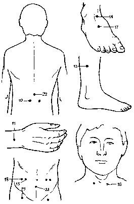 Точечный массаж при геморрое